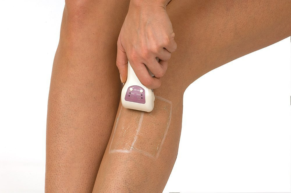 best home electrolysis hair removal