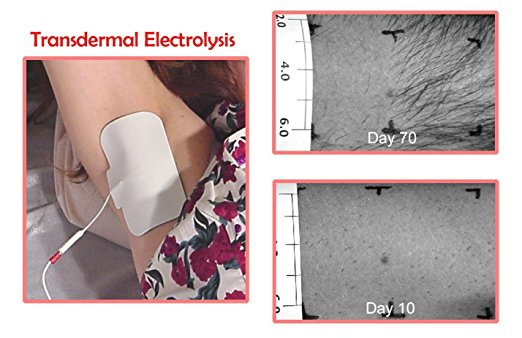 home electrolysis hair removal reviews