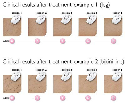 IPL Hair Removal System effectiveness