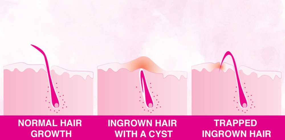 ingrown hair serum Reviews